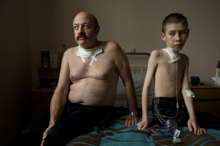 Suffering from thyroid cancer, Oleg Shairo, 54, and Dima Bogdanovich, 13, receive